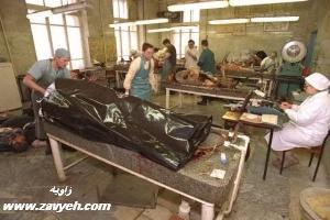کارخانه بازیافت اعضای بدن انسان